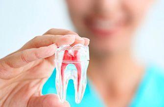 Endodoncia en Orthoarte