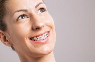 Ortodoncia Orthoarte