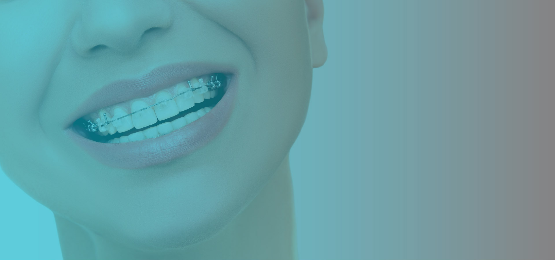 promocion de ortodoncia medellin